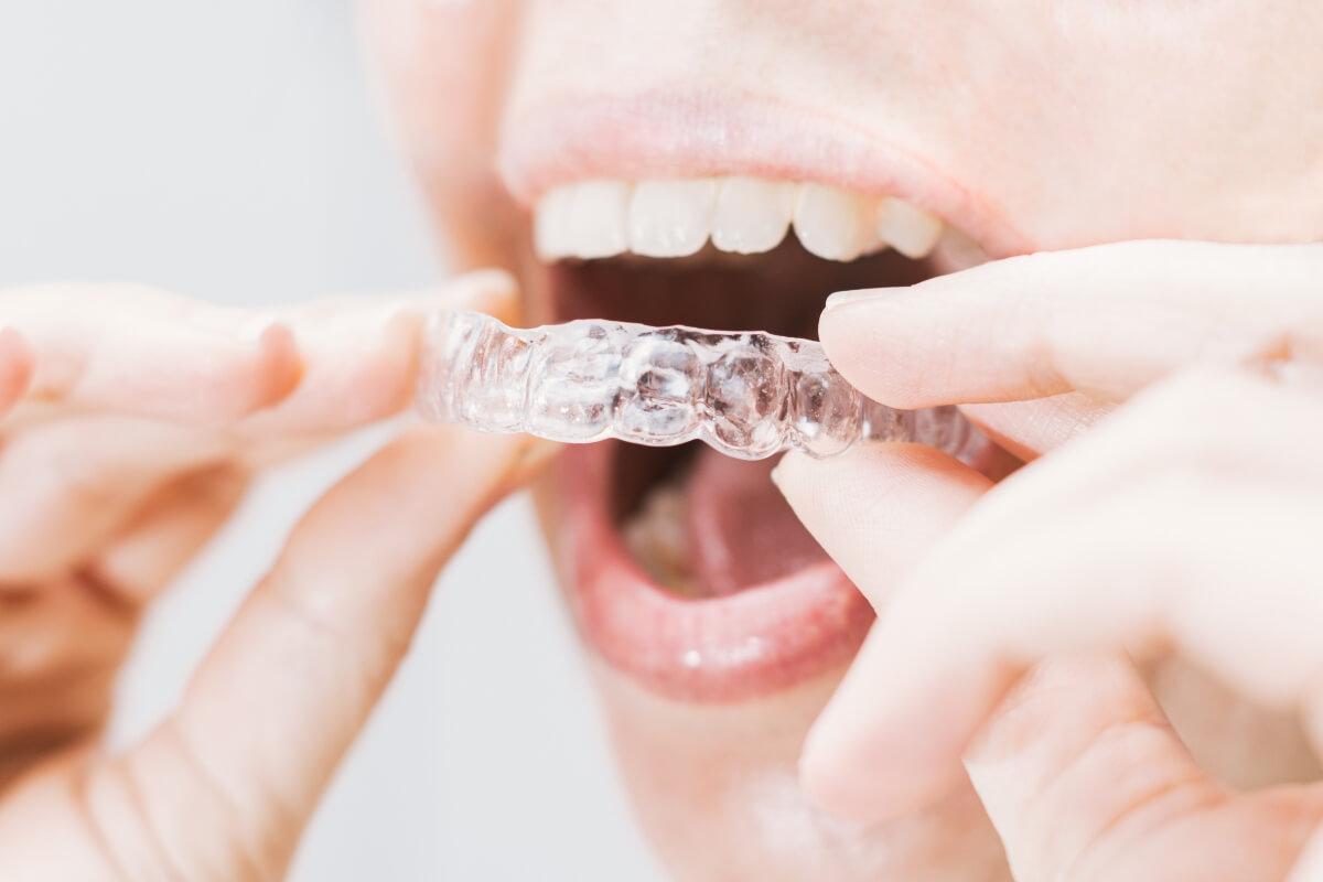 Tipos de retenedores tras la ortodoncia
