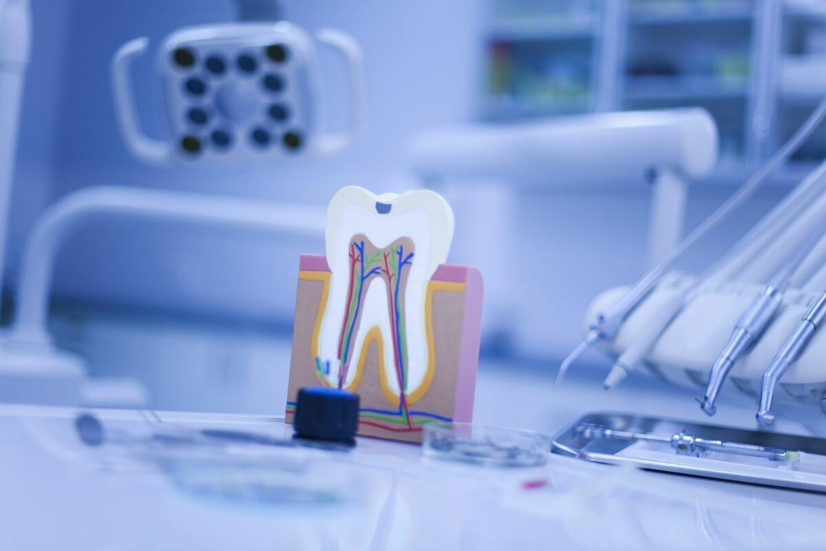 Consecuencias de una endodoncia mal hecha